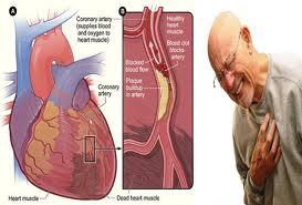 jantungkoroner